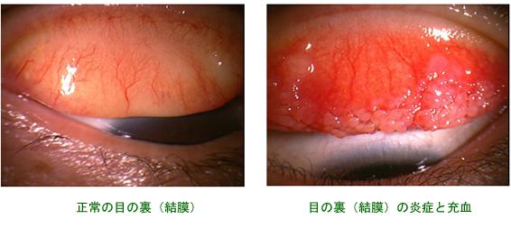 花粉症の症状写真