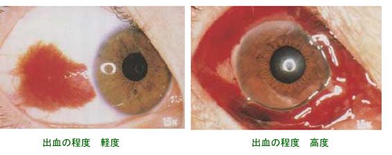 結膜下出血 (けつまくかしゅっけつ)の症状写真